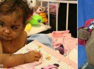 دختر بچه ای که بدنش از ته سیگار والدینش سوخته است