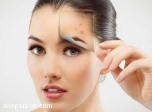 ساده ترین راه های رفع لکه قهوه ای پوست صورت