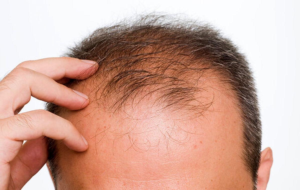 جلوگیری از ریزش مو با یک رژیم غذایی جدید و نوین