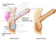 شکستگی آلت تناسی یکی از فجیع ترین بیماری ها